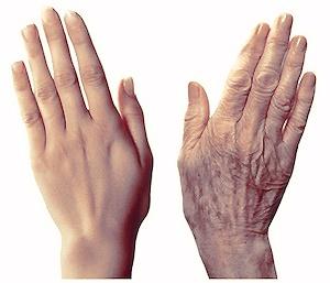 Door afname van het onderhuidse vetweefsel, rimpels pigmentvlekken kunnen handen er verouderd uitzien