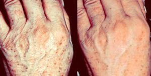 Voor en na behandeling van de handen met Radiesse en tretinoïnecrème