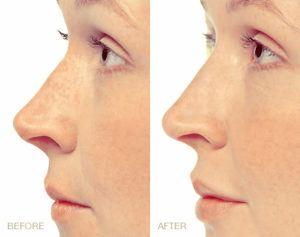 Behandeling van de lippen kan zorgen voor een vriendelijkere uitstraling