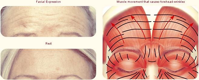 Voorhoofdrimpels en onderliggende spieren