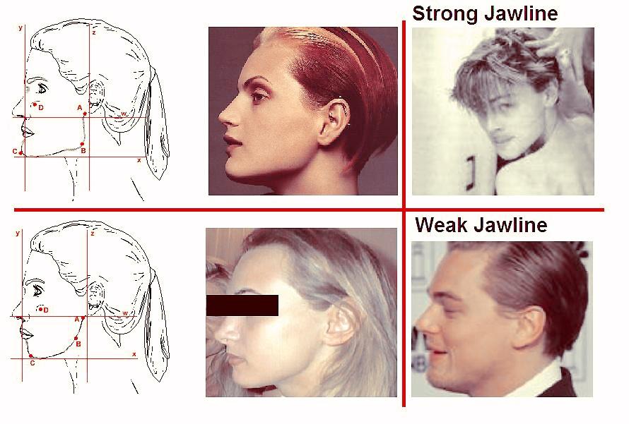 Een sterke, hoekige kaaklijn (boven en een niet-hoekige, zwakke kaaklijn (onder)
