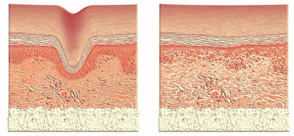 Belotero vloeit samen met de behandelde huid waardoor er een glad oppervlak ontstaat