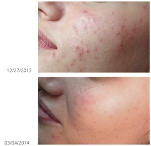 Plexr kan ook ingezet worden om littekens door acne te verminderen