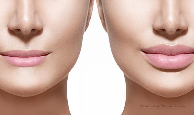 Populair Lippen die je echt wilt | Praktijk voor Injectables #HI21