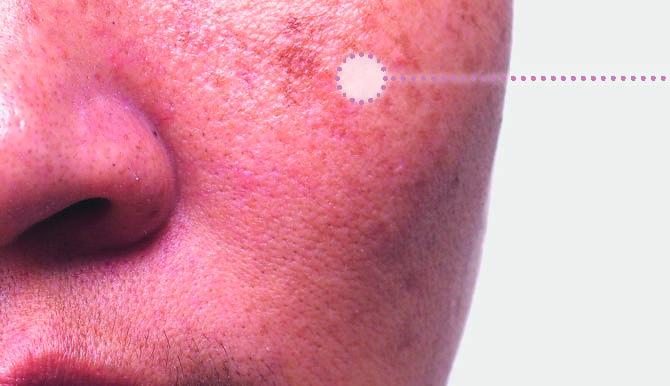 Aanwijzer hyperpigmentatie