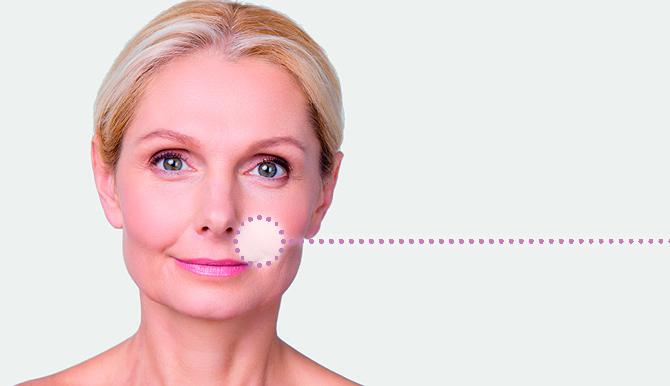 Aanwijzer neuslippenplooi