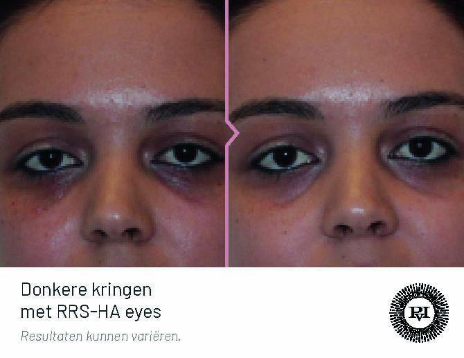 Voor-Na Donkere kringen met RRS-HA eyes