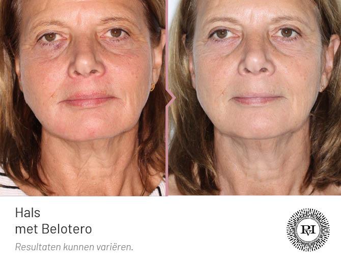 voor en na foto van de hals/nek behandeling met de Belotero filler
