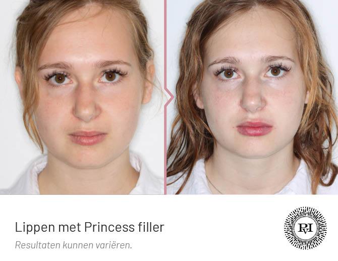 voor en na foto van de lippen behandeling met Princess filler