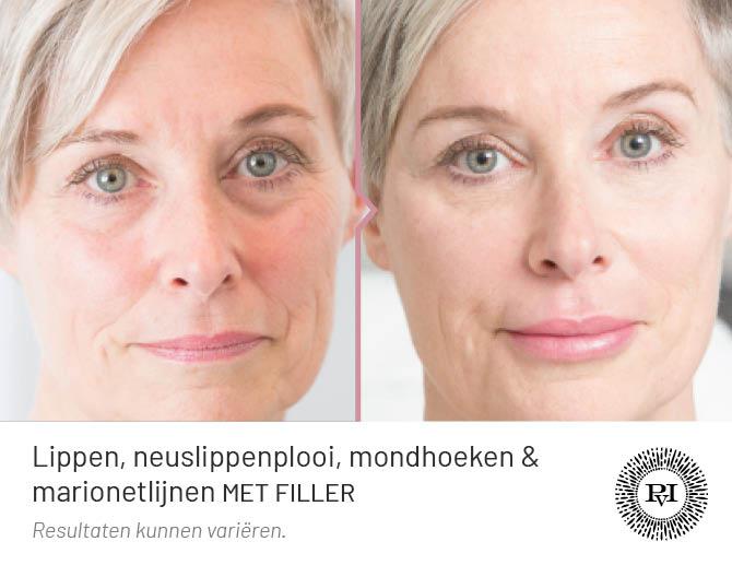 voor en na foto van demarionetlijnen, lippen, neuslippenplooi, mondhoeken en traangoot met fillers