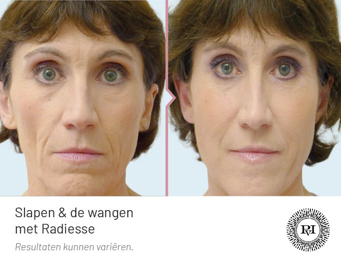 voor en na foto van de wallen, traangoot en ingevallen slapen behandeling met Radiesse filler