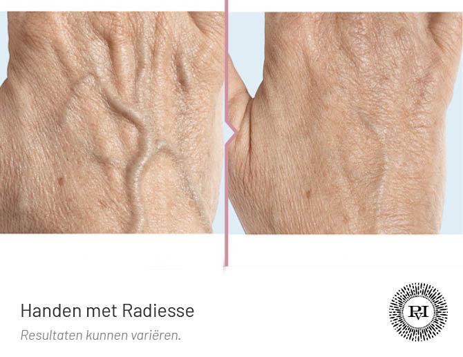 Voor-Na Radiesse handen