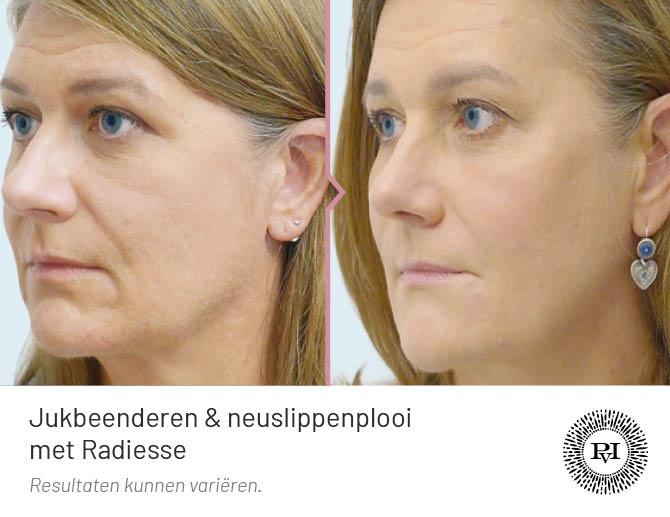 voor en na foto van de neuslippenplooi en jukbeenderen behandeling met Radiesse filler