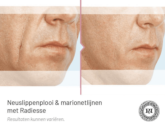 voor en na foto van de neuslippenplooi en marionetlijnen behandeling met Radiesse filler