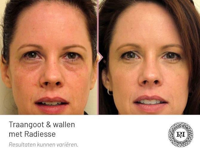 voor en na foto van de wallen en traangoot behandeling met Radiesse filler