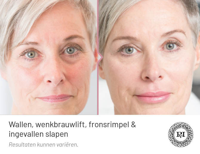 voor en na foto van de wallen en traangoot behandeling met fillers