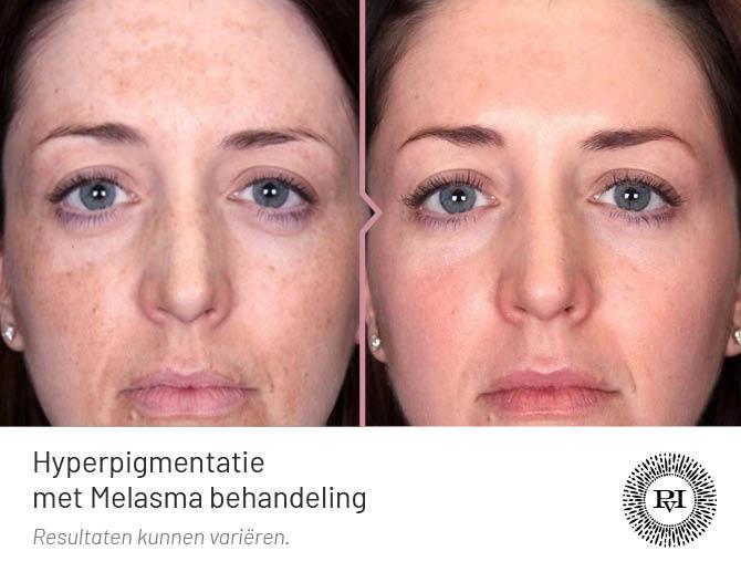 Voor en na hyperpigmentatie Melasma behandeling