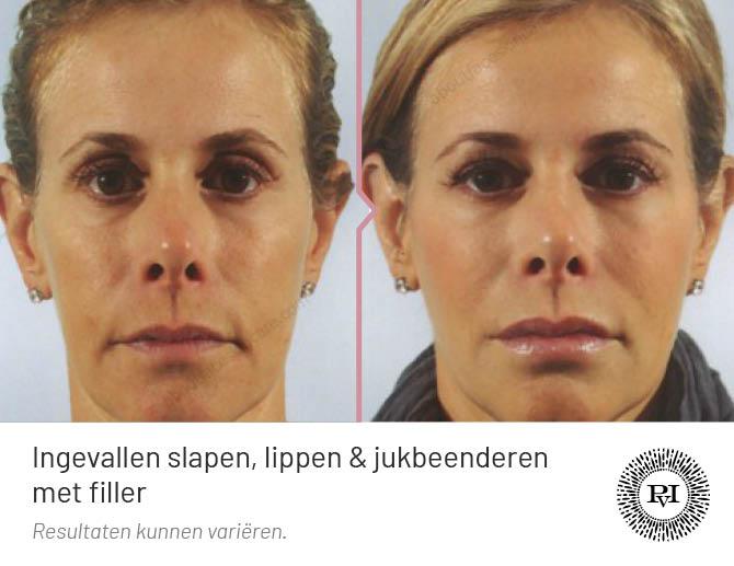 voor en na foto lippen, slapen en jukbeenderen behandeling met fillers