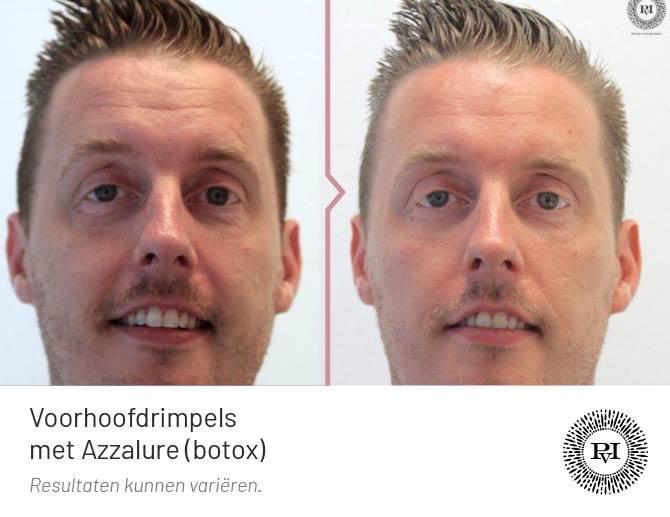 Voor en na foto voorhoofdrimpels behandeling met Azzalure