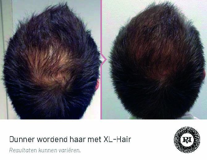 Voor en na kaalheid met XL-Hair