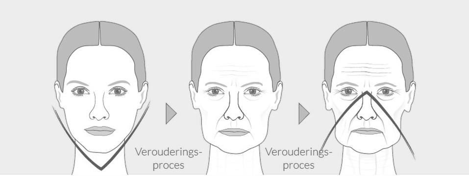 omgekeerde V gezicht