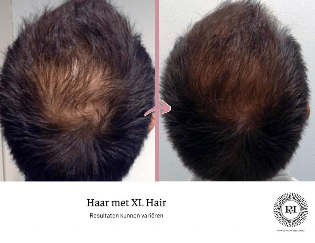 Voor en na foto XL Hair