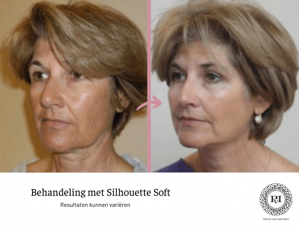 Silhouette soft voor- en nafoto