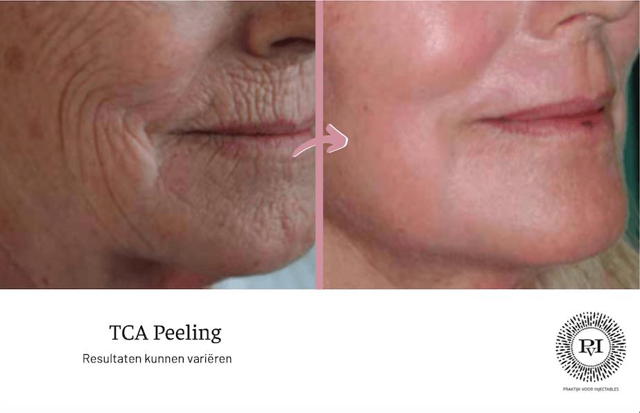 Voor en na foto tca peeling